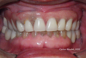 Partial Overdenture on implants