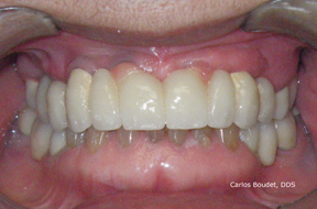 Fixed partial overdenture on implants