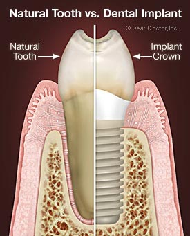 picture of tooth and implant